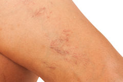 Varicose veins on the legs Royalty Free Stock Photos