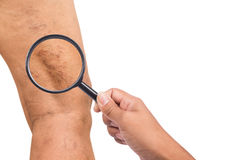 Varicose veins on the legs of middle-aged women. On white backgroud Royalty Free Stock Photography