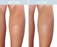 Varicose veins on the legs after and before treatment. Treatment of varicose before and after. Varicose veins on the legs royalty free stock image