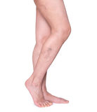 Varicose veins in the legs. Woman legs isolated on white. Varicose veins in the legs. Woman legs isolated on white stock photo