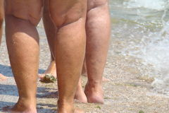Varicose veins. Of the lower extremities of the legs Stock Photo