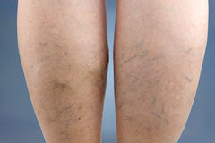 Varicose veins. Macro. Spider-veins stock photo