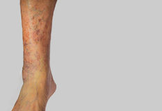 Varicose veins on a male leg. The varicose veins on a leg of old man on gray Stock Images