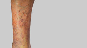 Varicose veins on a male leg. The varicose veins on a leg of old man on gray Stock Image