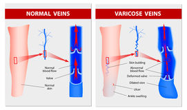 Varicose veins. Medical illustration. Varicose vein forms in a leg. Normal vein and varicose vein. Vector Stock Photography