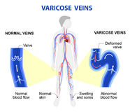 Varicose veins. Medical illustration Stock Photo