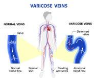 Varicose veins. Medical illustration. Varicose vein forms in a leg. Normal vein and varicose vein. Vector Stock Photo