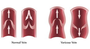 Varicose Veins and normal veins Royalty Free Stock Photography