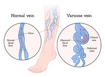 Varicose veins poster stock illustration
