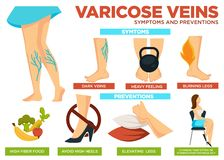Varicose veins symptoms and preventions poster with info vector. Heavy feeling and burning legs are traits of disease. Eat food high in fiber, avoid heels and stock illustration
