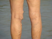 Varicose veins Royalty Free Stock Photo