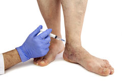 Varicose veins treatment Stock Photos