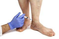 Varicose veins treatment. Varicose veins. Medical treatment. Isolated on white background Stock Photos