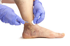 Varicose veins treatment. Varicose veins. Medical treatment. Isolated on white background Royalty Free Stock Photos