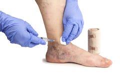 Varicose veins treatment. Varicose veins. Medical treatment. Isolated on white background Stock Image