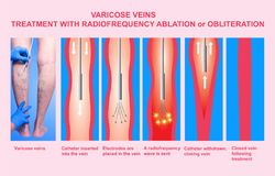 Varicose Veins and Treatment with radiofrequency ablation. Varicose Veins. Treatment with radiofrequency ablation orobliteration of female legs Royalty Free Stock Image