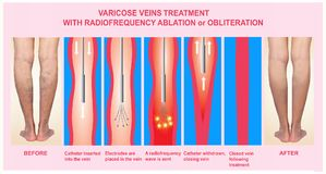 Varicose Veins and Treatment with radiofrequency ablation. Varicose Veins. Treatment with radiofrequency ablation orobliteration of female legs royalty free stock images
