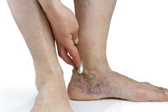 Varicose veins Royalty Free Stock Image