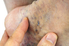 Varicose veins. Varicose vein. Macro. Spider vein Royalty Free Stock Images