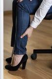 Varicose veins. Woman with high heels having varicose veins in legs Royalty Free Stock Image