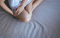Varicose veins on the womans leg,Concept skin health. Top view Stock Photos