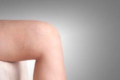 Varicose veins in women. A varicose veins in women Stock Photo