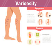 Varicosity Vecteur cartoon illustration stock