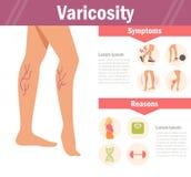 Varicosity vektor cartoon stock illustrationer