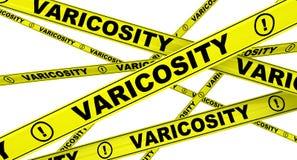Varicosity. Yellow warning tapes Royalty Free Stock Photos