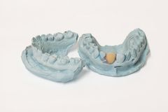 Variety of dental plaster molds Royalty Free Stock Image