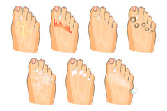 The various injuries of the feet. fungus, burning, warts, sweating. as well as soap, lotion, and spray Stock Images