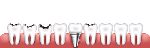 Various teeth conditions Royalty Free Stock Photo