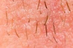 Varkenshaar op de baard van een mens stock foto