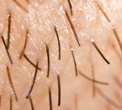 Varkenshaar op de baard van een mens stock afbeelding