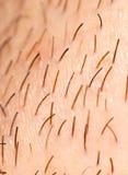 Varkenshaar op de baard van een mens royalty-vrije stock afbeelding