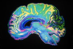 Varredura colorida de MRI do cérebro humano ilustração royalty free