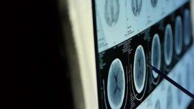 Varredura da cabeça pet/ct do estudo do doutor para a análise a doença, raio X do cérebro do crânio filme