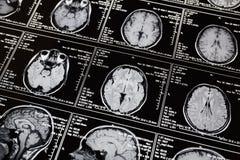 Varredura da ressonância magnética do cérebro Varredura da cabeça de MRI fotografia de stock