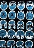 Varredura de cérebro de Mri Fotografia de Stock