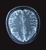 Varredura de MRI Imagens de Stock