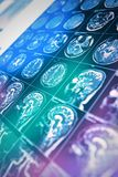 Varredura de MRI da cabeça do paciente nos raios da luz colorida, fundo para o trabalho científico e prático, notícia, página da  fotografia de stock