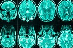 Varredura de MRI da cabeça e do cérebro de uma pessoa fotografia de stock