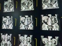 Varredura de MRI da espinha lumbosacral do LS, da ideia coronal, do caso do spondylosis lombar e de fraturas de compressão verteb fotografia de stock royalty free