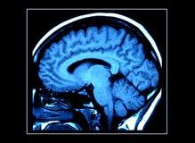 Varredura do cérebro de MRI Imagens de Stock