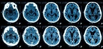Varredura do CT do cérebro, sem e com meios de contraste Imagens de Stock