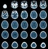 Varredura do CT no ancião Imagens de Stock Royalty Free