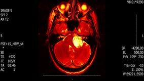 Varredura do mri do cérebro do homem da vida real com da metragem nova médica da ciência 4k da saúde da qualidade do reseach do n video estoque