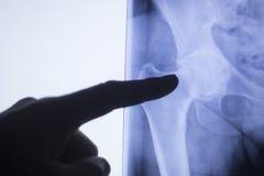 Varredura do teste do raio X da articulação da bacia fotografia de stock royalty free