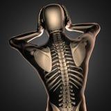 Varredura humana da radiografia com ossos Imagens de Stock