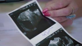 Varredura médica do ultrassom do embrião humano video estoque